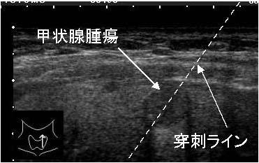 甲状腺腫瘍2.jpg